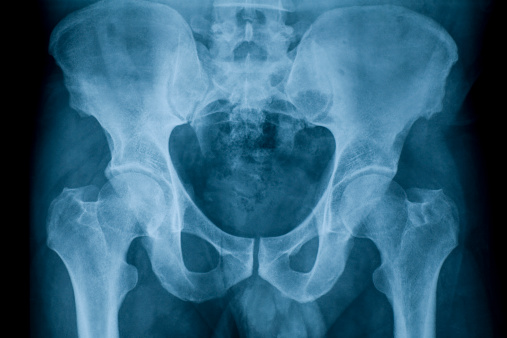 X-ray image of pelvis