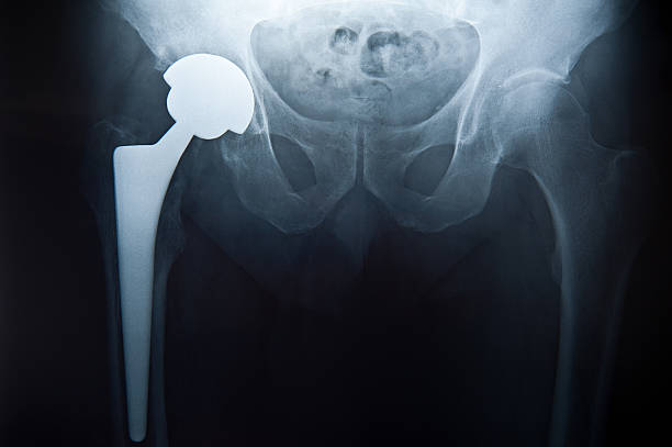 Pelvis X-Ray with hip replacement stock photo