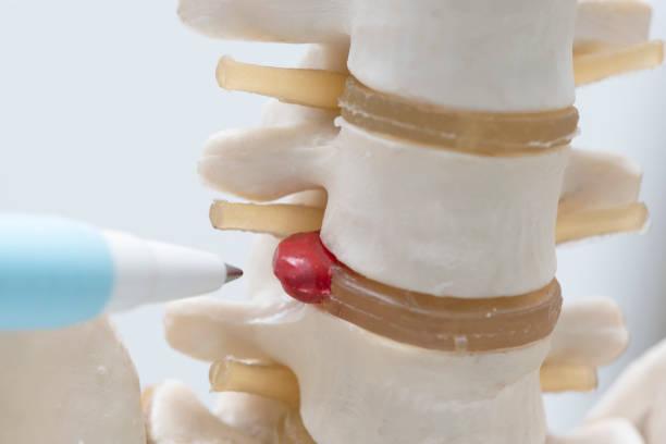 Un stylo pointant sur le modèle de la hernie discale lombaire - Photo