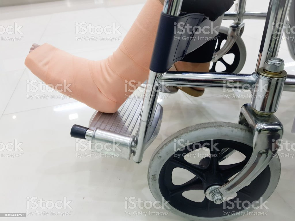 people broken leg sitting on a wheelchair is at a hospital. people broken leg sitting on a wheelchair is at a hospital. 30-39 Years Stock Photo