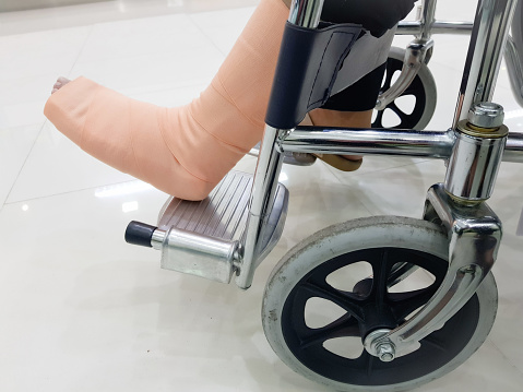 People Broken Leg Sitting On A Wheelchair Is At A Hospital Stock Photo - Download Image Now