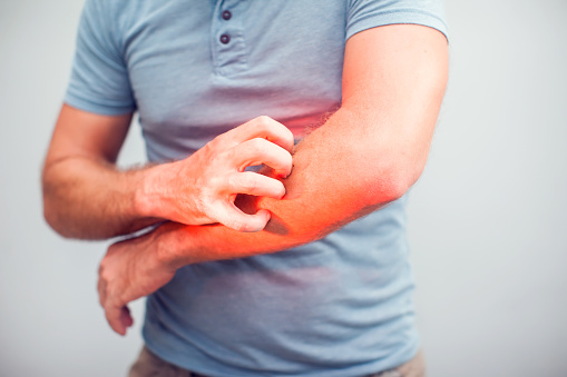 istock People scratch the itch with hand, Elbow, itching, Healthcare And Medicine, Men with skin problem concept 968972234
