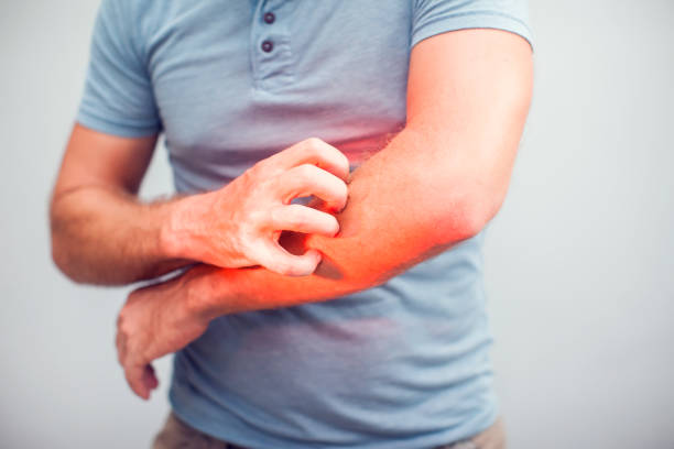 People scratch the itch with hand, Elbow, itching, Healthcare And Medicine, Men with skin problem concept People scratch the itch with hand, Elbow, itching, Healthcare And Medicine, Men with skin problem concept skin condition stock pictures, royalty-free photos & images
