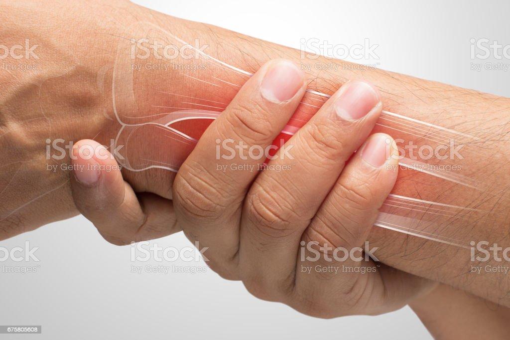 Menschen Mit Arm Schmerzen De Quervain Sehnenscheidenentzündung ...