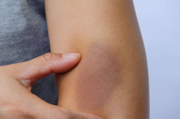 people with wounded arm stock photo