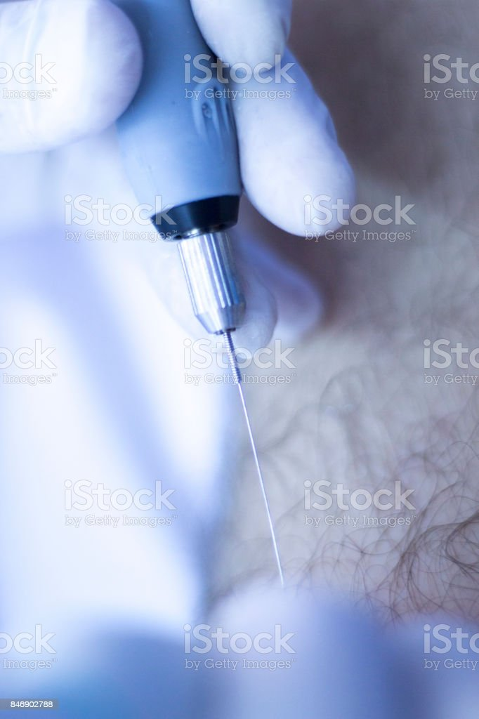 EPI percutaneous intratissue electrolysis scan to aid dry needling acupunture physiotherapy physical therapy treatment of patient in clinic. stock photo