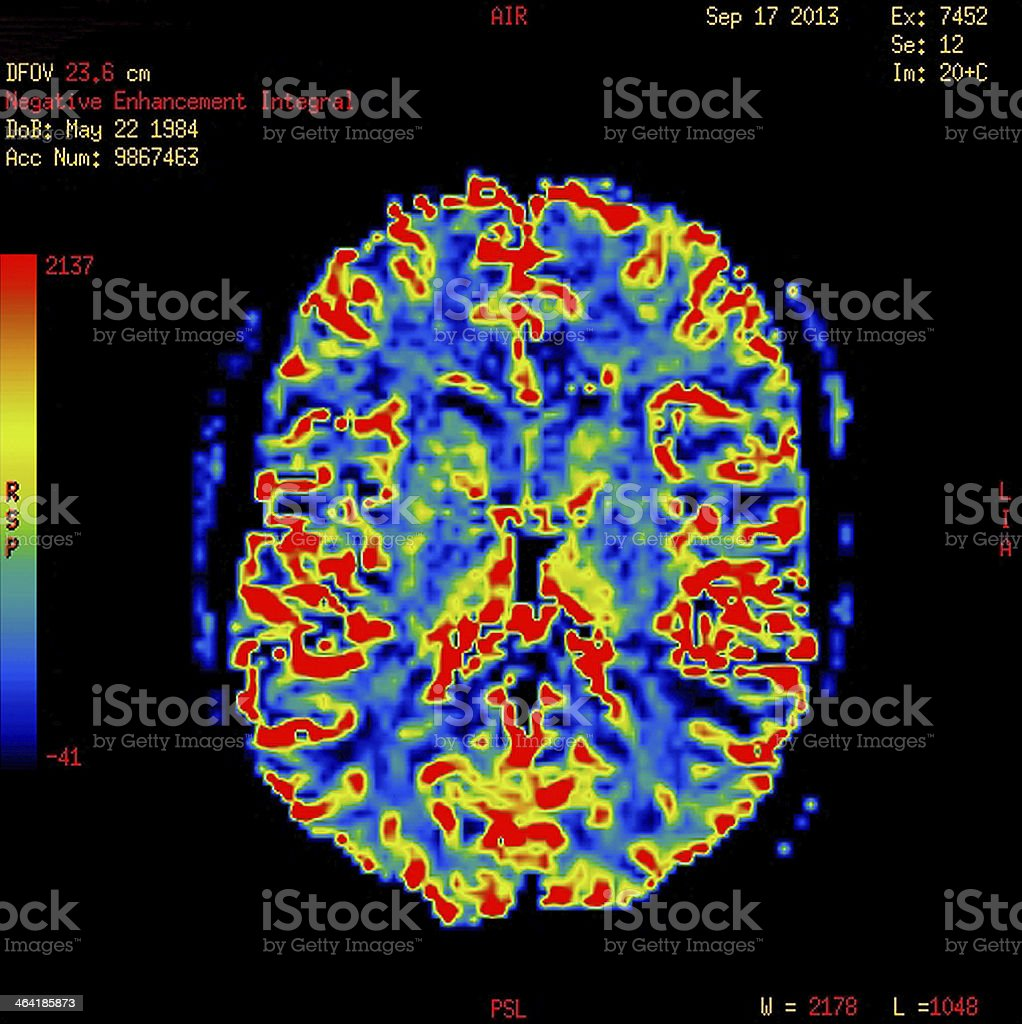 Perfusion MR imaging of a normal brain This is a computer generated MR image. It measures the cerebral blood volume and compares the blood volume of similar areas in both cerebral hemispheres. The scale on reader´s left hand side indicates the relative blood volume; red indicates high blood volume, and blue indicates low volume. Blood Flow Stock Photo