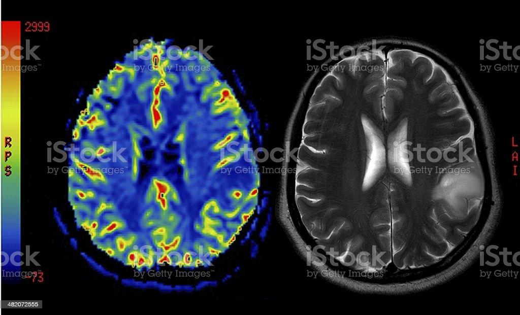 Perfusion MRI imaging of a benign brain tumor stock photo