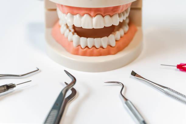 periodontal disease stock photo