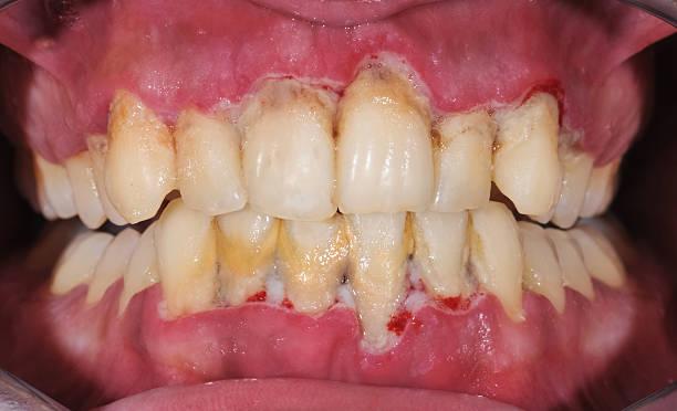 Periodontitis – Foto