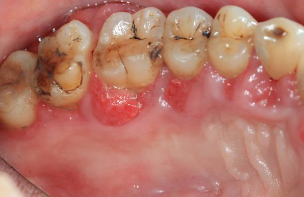 periodontitis. stock photo