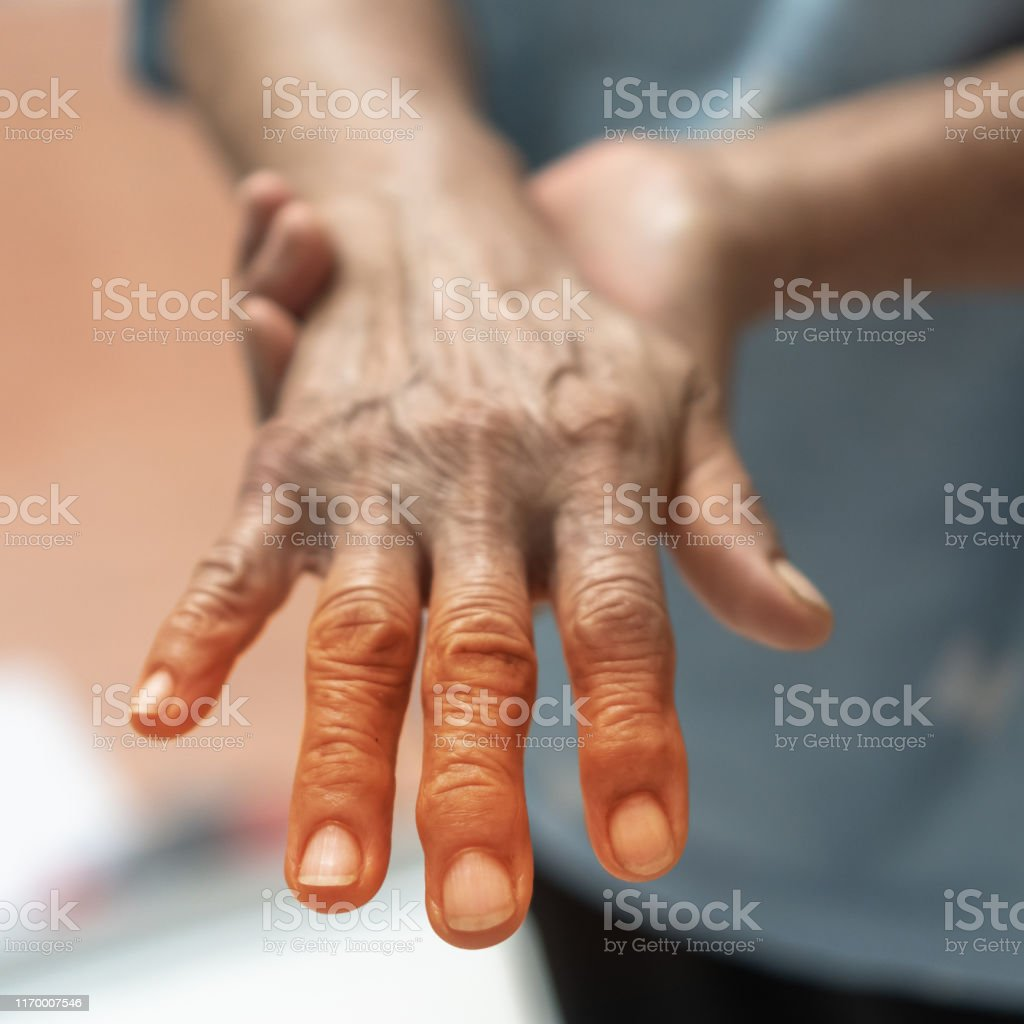 entumecimiento del dolor articular