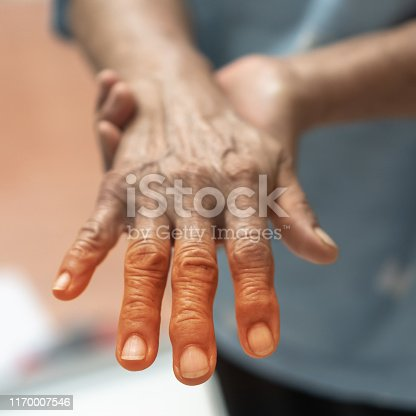 istock Peripheral Neuropathy pain in elderly ageing patient on hand, palm, fingers, joint and sensory nerves with numb, aching, muscle weakness,  stabbing, burning or tingling sensory feeling 1170007546