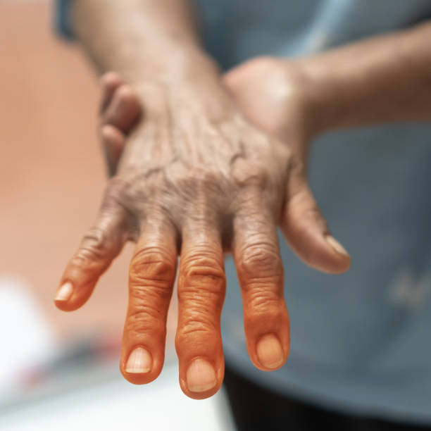 Peripheral Neuropathy pain in elderly ageing patient on hand, palm, fingers, joint and sensory nerves with numb, aching, muscle weakness,  stabbing, burning or tingling sensory feeling Peripheral Neuropathy pain in elderly ageing patient on hand, palm, fingers, joint and sensory nerves with numb, aching, muscle weakness,  stabbing, burning or tingling sensory feeling neuroscience patient stock pictures, royalty-free photos & images