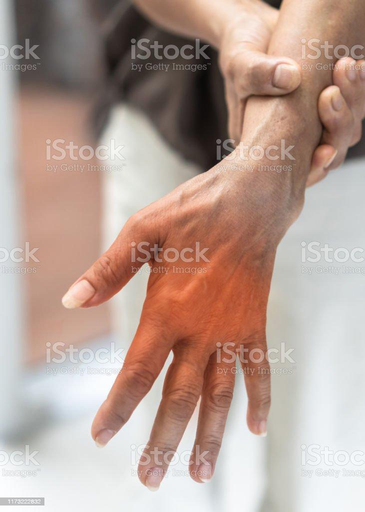 Minhas nas mãos nervos nos dor