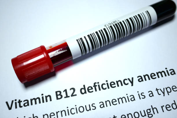 pernicious anemia - deficient stock pictures, royalty-free photos & images