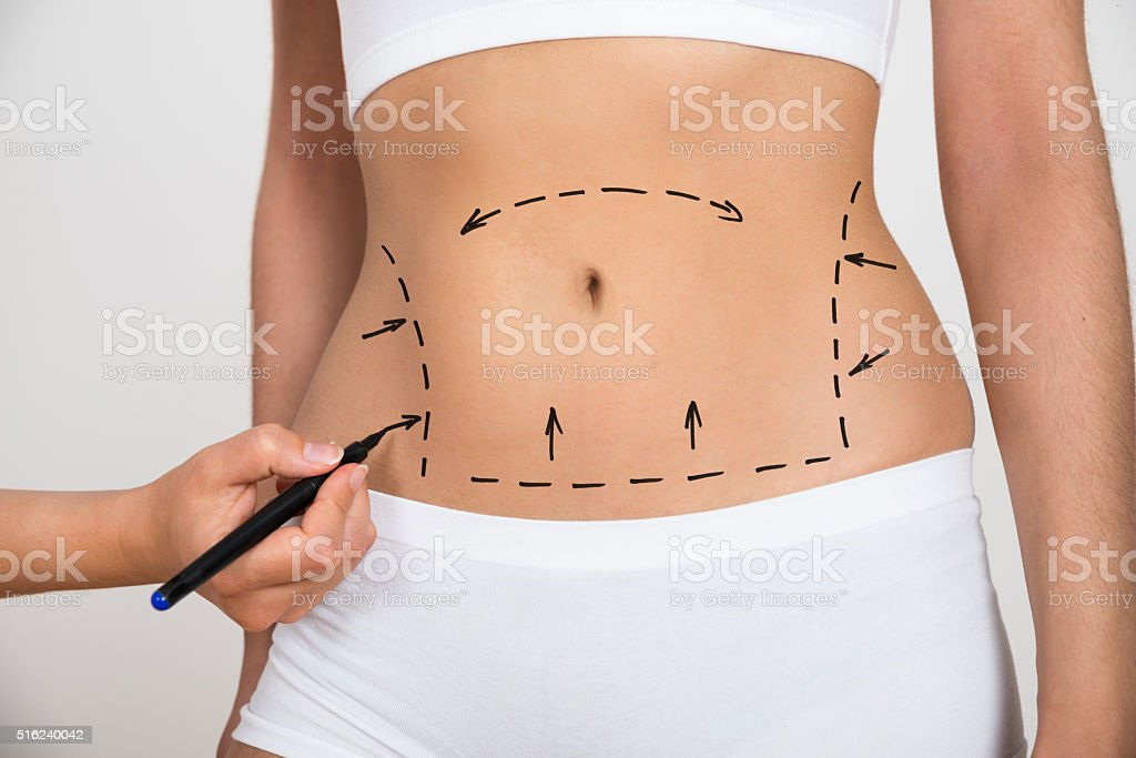 Person Hand Drawing Lines On A Woman's Abdomen stock photo