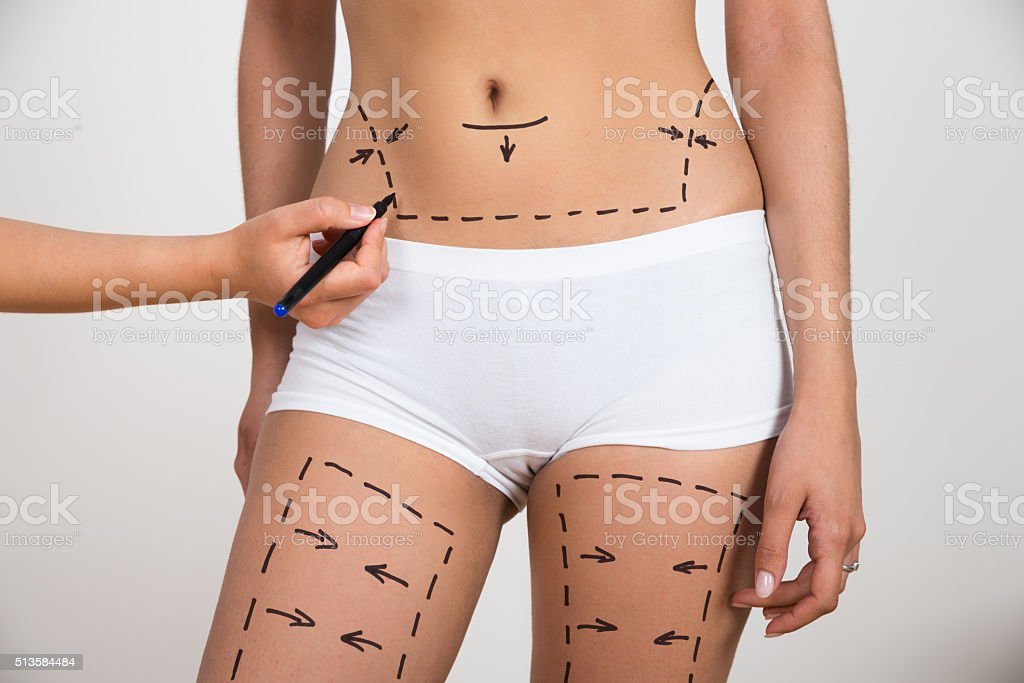 Person Hand Drawing Lines On Woman's Abdomen And Leg stock photo