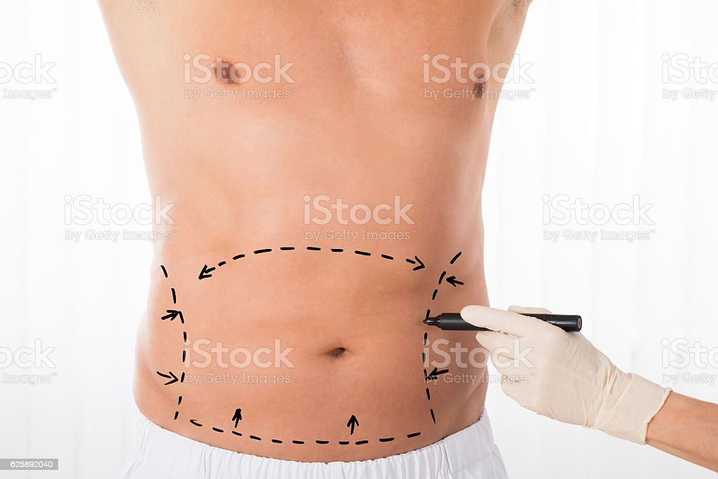Person Hands Drawing Correction Lines On Stomach stock photo