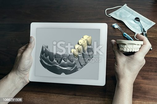 Unidentified person holding tablet showing three dimensional render of fake white teeth held with other hand