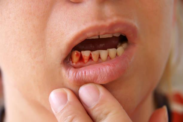 person holding their lip down to show their bleeding gums - tandvleesontsteking stockfoto's en -beelden