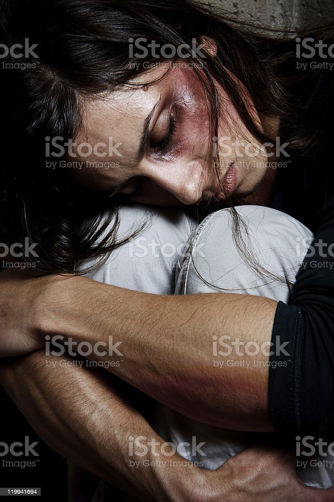 Person hugging their knees with bruised face stock photo