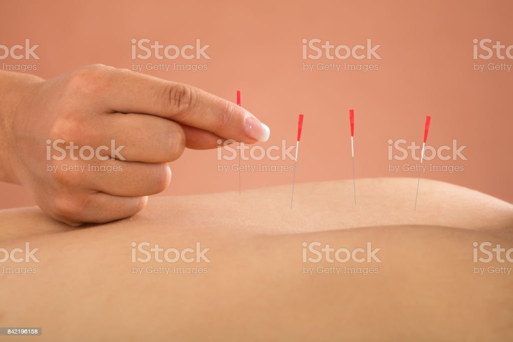Person Receiving Acupuncture Treatment stock photo