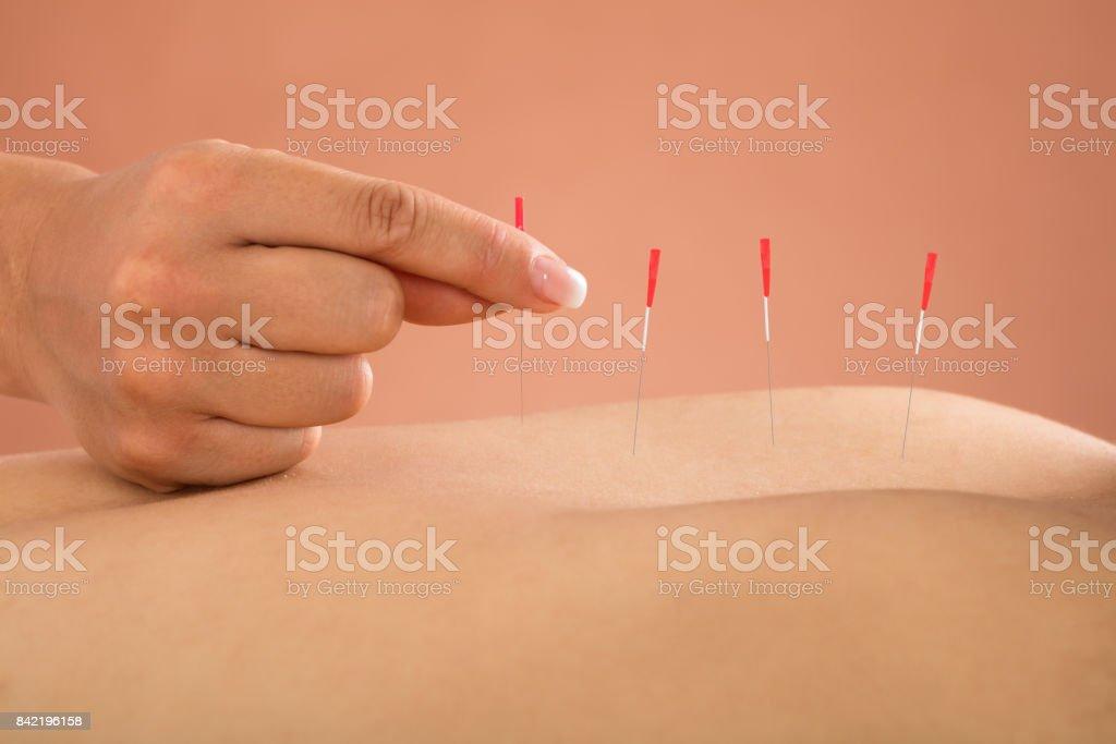 Persona que recibe tratamiento de acupuntura - foto de stock