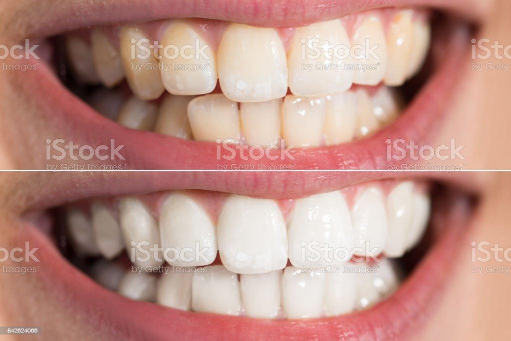 Person Zähne vor und nach der Aufhellung – Foto