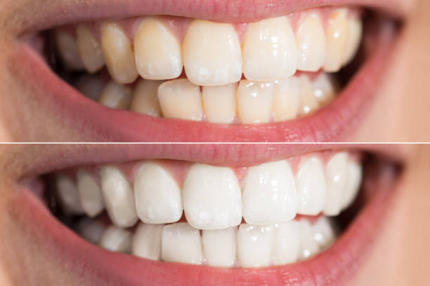 persoon tanden voor en na de whitening - tanden bleken stockfoto's en -beelden