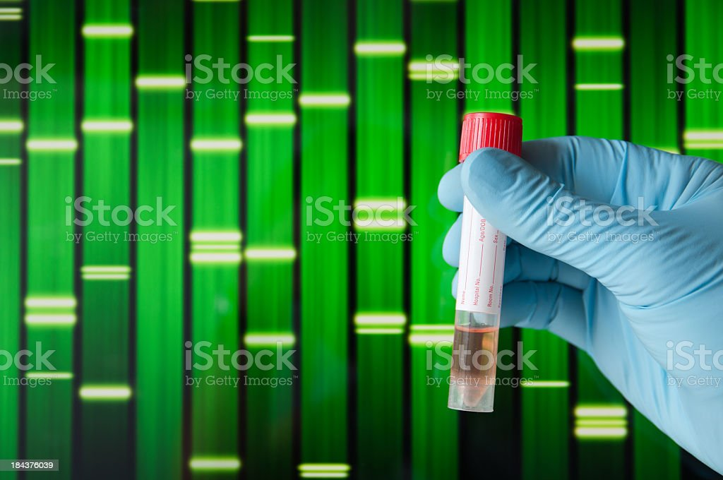 A person wearing a glove holding a test tube stock photo