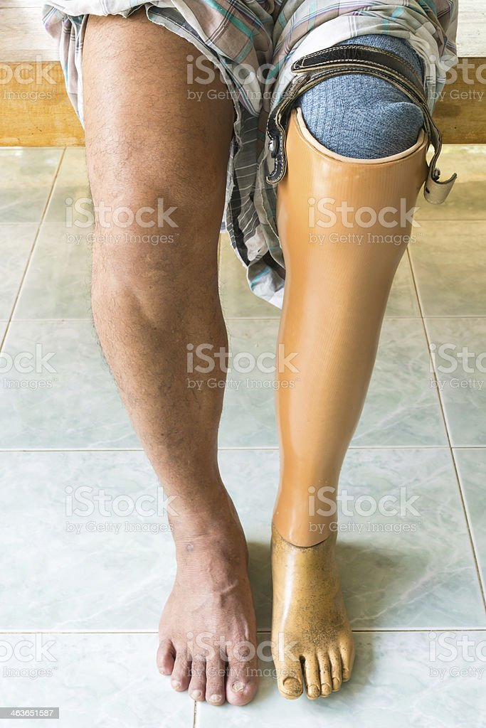Person with a prosthetic leg and a real led stock photo