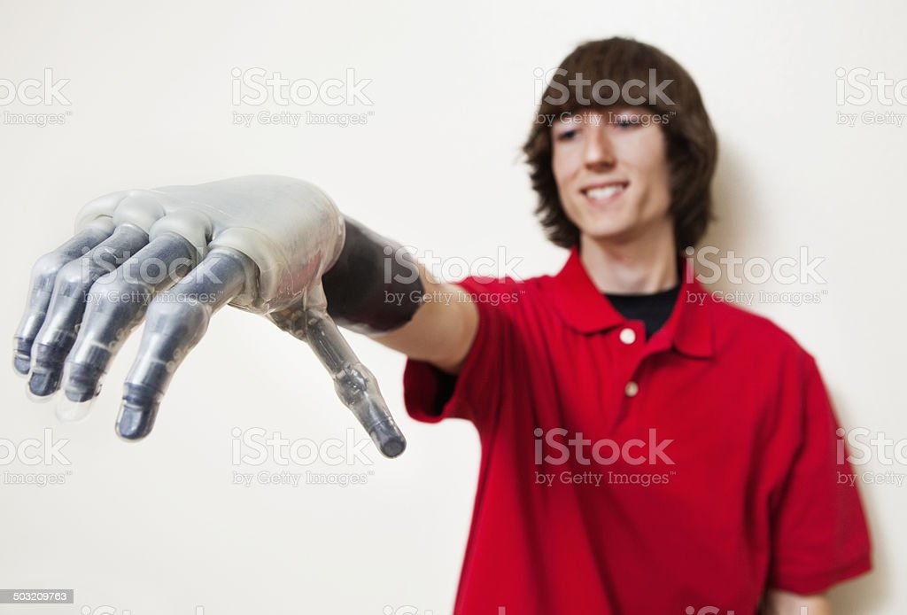 Person with Prosthetic limb stock photo