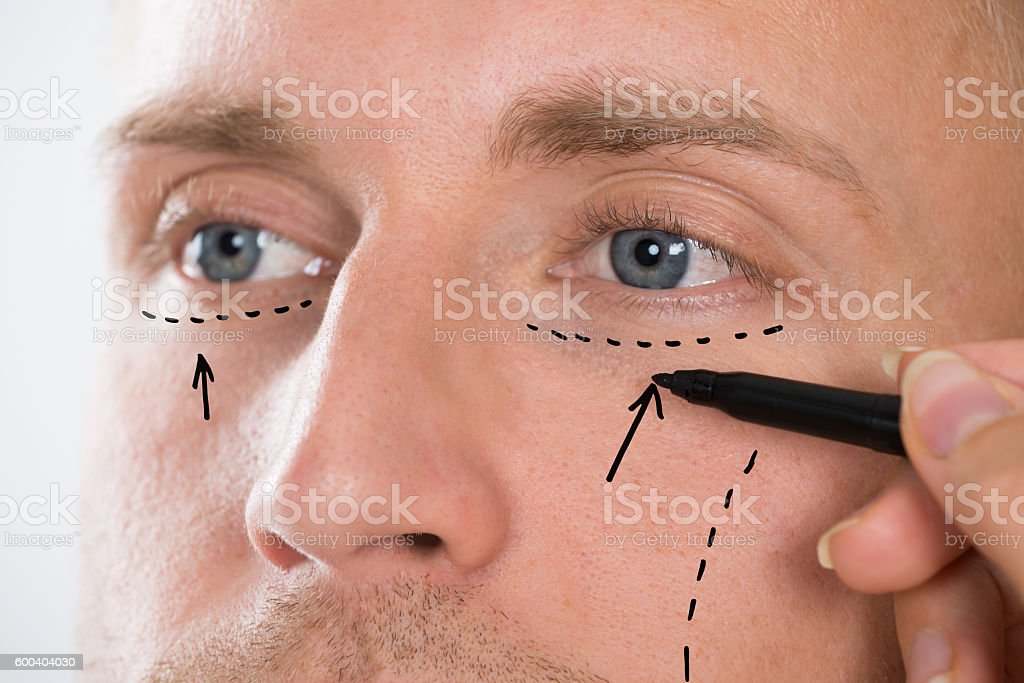 Person's Hand Drawing Correction Line With Pen Near Man's Eyes – Foto
