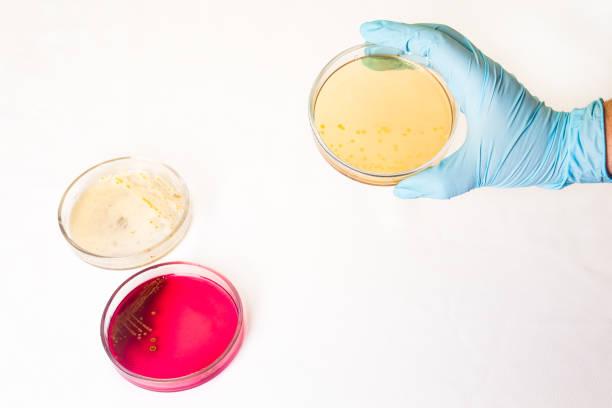 Petrischalen mit wachsenden Bakterien im medizinischen Labor – Foto