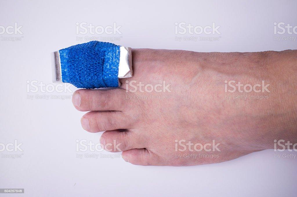 Phalanx fracture with splint and elastic gauze stock photo