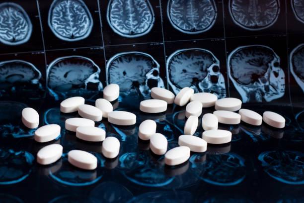 pharmaceutical medicine pills on magnetic brain resonance scan mri background. pharmacy theme, health care, drug prescription for tumor, alzheimer, mental illness treatment medication - droghe ricreative foto e immagini stock