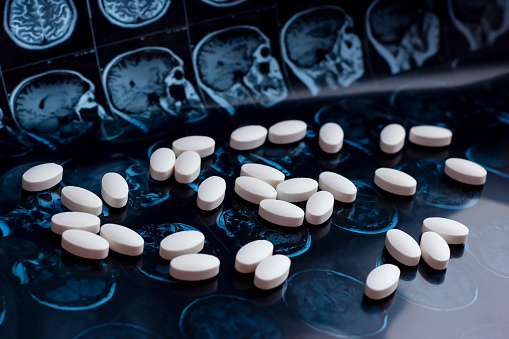 istock Pharmaceutical medicine pills on magnetic brain resonance scan mri background. Pharmacy theme, health care, drug prescription for tumor, alzheimer, mental illness treatment medication 1141924020