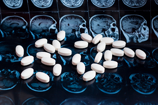 istock Pharmaceutical medicine pills on magnetic brain resonance scan mri background. Pharmacy theme, health care, drug prescription for tumor, alzheimer, mental illness treatment medication 1141924027