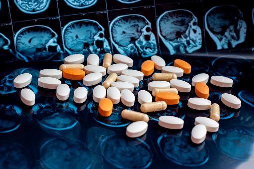 istock Pharmaceutical medicine pills on magnetic brain resonance scan mri background. Pharmacy theme, health care, drug prescription for tumor, alzheimer, mental illness treatment medication 1141943646