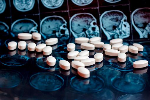 istock Pharmaceutical medicine pills on magnetic brain resonance scan mri background. Pharmacy theme, health care, drug prescription for tumor, alzheimer, mental illness treatment medication 1141943686