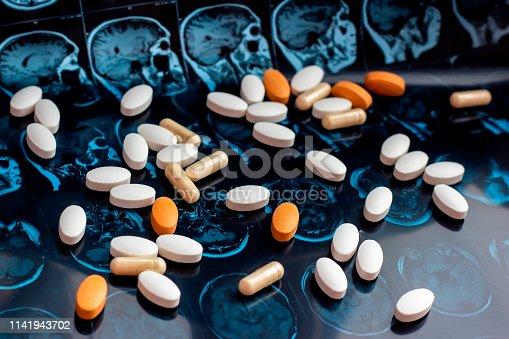 istock Pharmaceutical medicine pills on magnetic brain resonance scan mri background. Pharmacy theme, health care, drug prescription for tumor, alzheimer, mental illness treatment medication 1141943702
