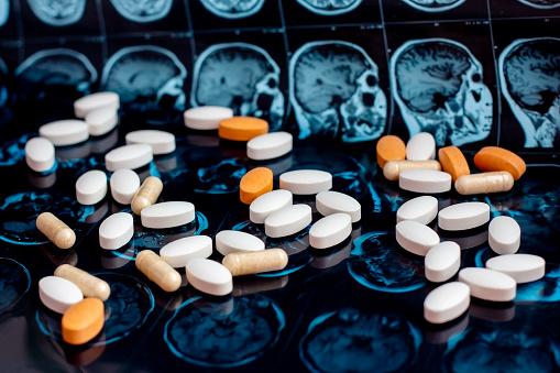 istock Pharmaceutical medicine pills on magnetic brain resonance scan mri background. Pharmacy theme, health care, drug prescription for tumor, alzheimer, mental illness treatment medication 1141943706