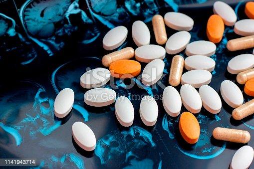 istock Pharmaceutical medicine pills on magnetic brain resonance scan mri background. Pharmacy theme, health care, drug prescription for tumor, alzheimer, mental illness treatment medication 1141943714