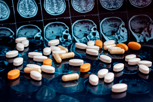 istock Pharmaceutical medicine pills on magnetic brain resonance scan mri background. Pharmacy theme, health care, drug prescription for tumor, alzheimer, mental illness treatment medication 1141943718