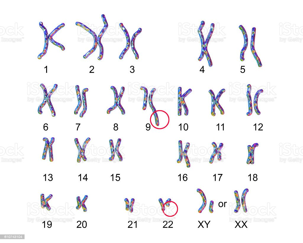 Philadelphia chromosome karyotype stock photo