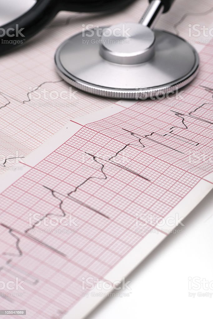 Phonendoscope and cardiogram - Royalty-free Backgrounds Stock Photo