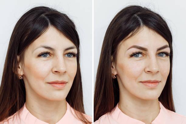 photo comparison before and after permanent makeup, tattooing of eyebrows - durabilidade imagens e fotografias de stock