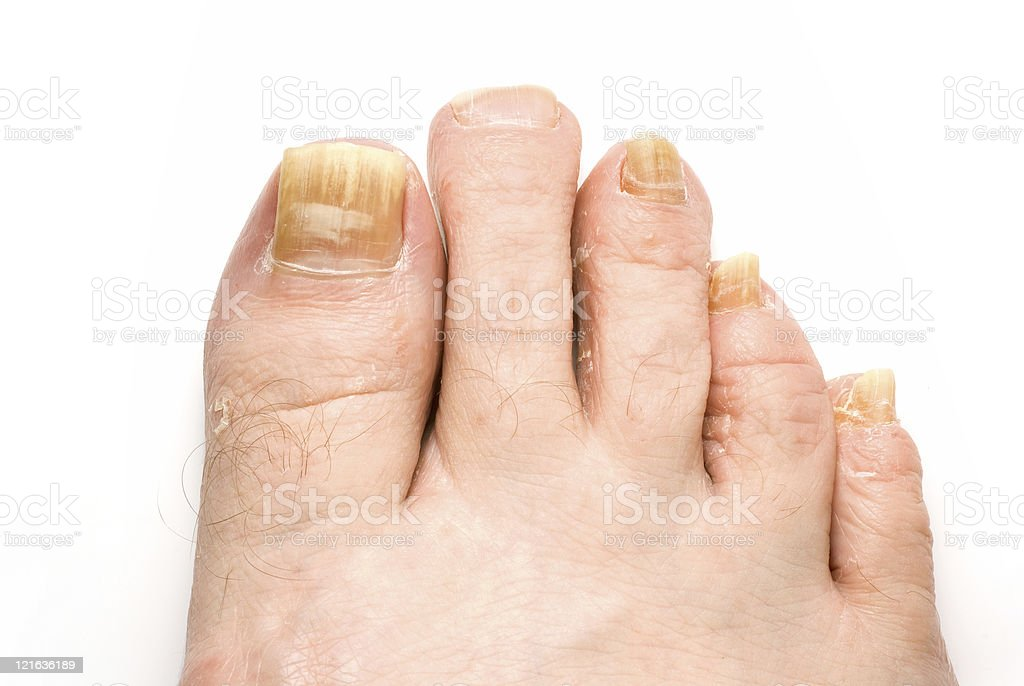 Photo of toenails suffering from fungus infection stock photo