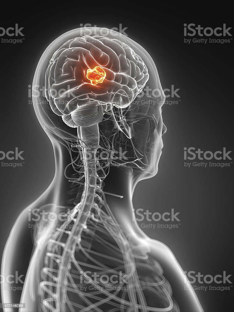 Photo of X-ray of brain with tumor stock photo